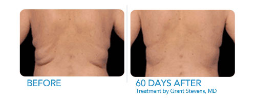 Lose love handles with Coolsculpting