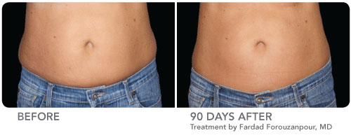Coolsculpting by Zeltiq in Minneapolis