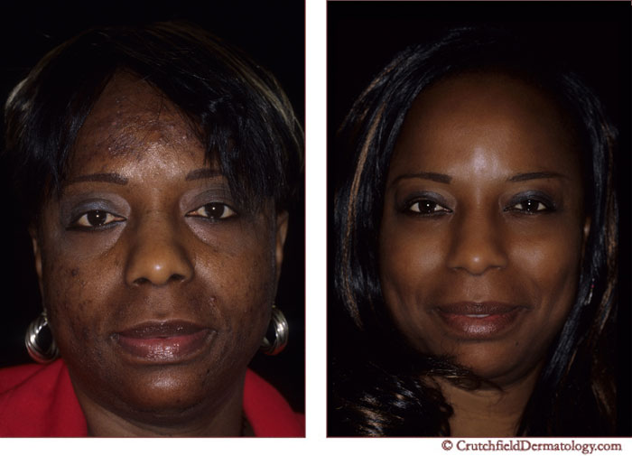 Before and After photo of patient with acne treated by Dr  Charles    Hyperpigmentation Face Before And After