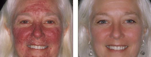 Before & After Acne Rosacea Treatment