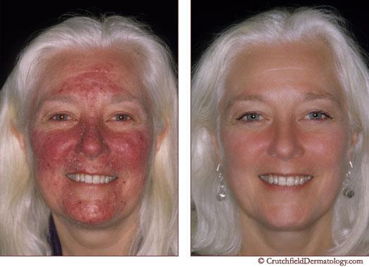 Adult Rosacea Treatment