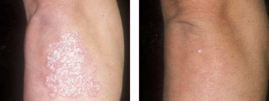 Successful Psoriasis Treatment
