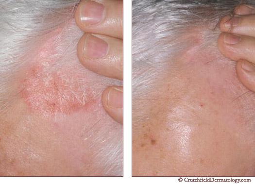 best psoriasis treatment in minnesota | crutchfield dermatology, Skeleton