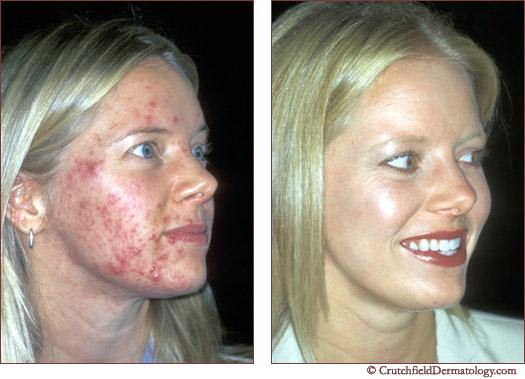 acne cause