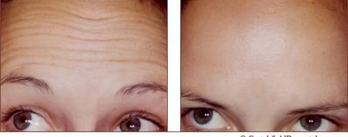 Minneapolis forehead botox wrinkle treatment