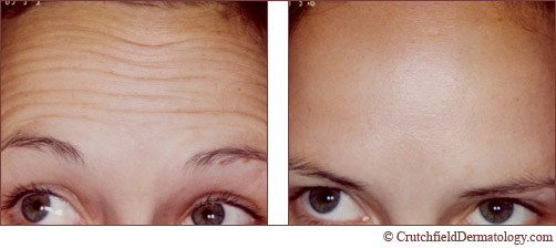 Minneapolis forehead botox wrinkle treatment