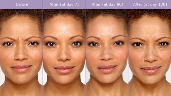 botox effect
