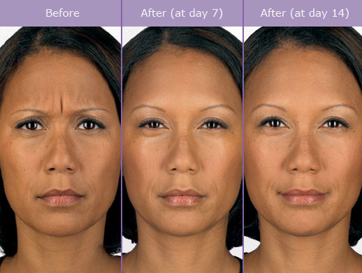 botox effects over time