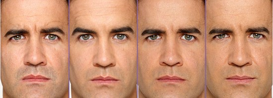 men botox injection before and after