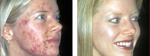 Clear Skin before and after image of acne