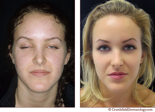 Before and after acne treatment photos