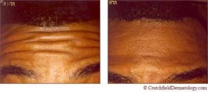 botox treatment image