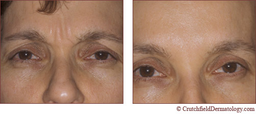 botox before and after injection
