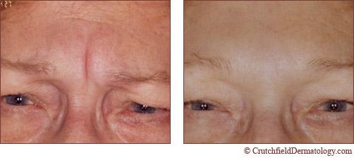 botox treatment success