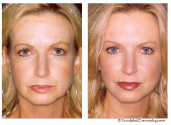 Before and after restylane image