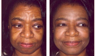 REstylane before treatment and after