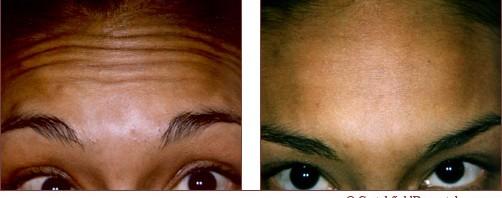 Botox Forehead Wrinkles & Fine Lines