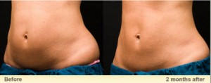 Before and After fat lose treatment