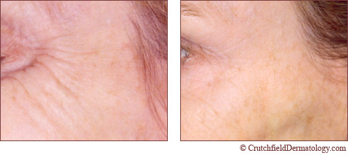 botox treatment around eyes