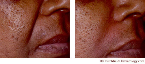 nasolabial wrinkle