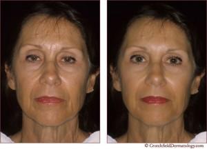 cosmetic dermatology minneapolis