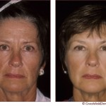 botox and restylane face treatment
