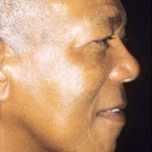 face mole removal
