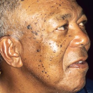 Face moles before treatment