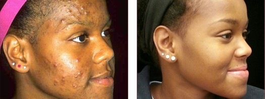 Before and After Acne Treatment Success