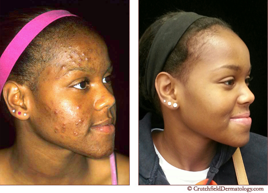 with acne and without acne