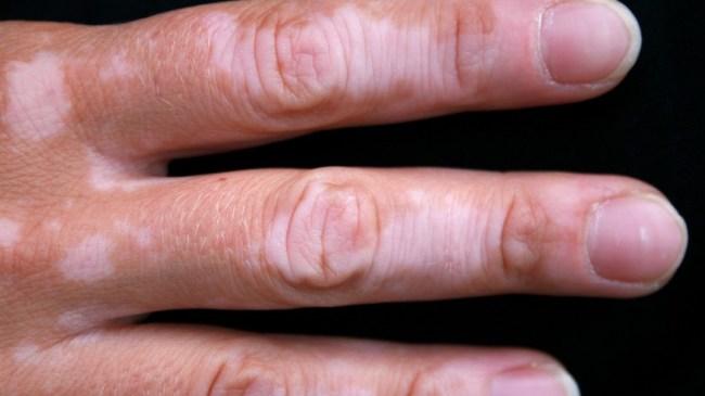 vitiligo fingers