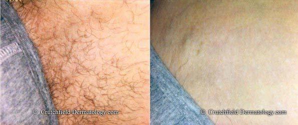 Bikini area laser hair removal