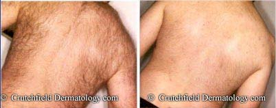 Back Hair Laser Hair Removal