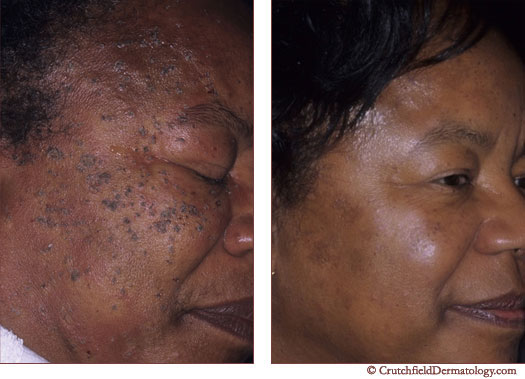 Pictures of facial moles