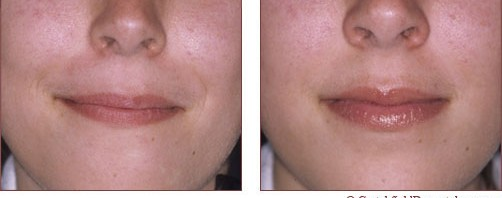 lip enhancment before and after