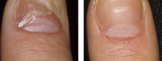 Fingernail Treatment Before and After Image