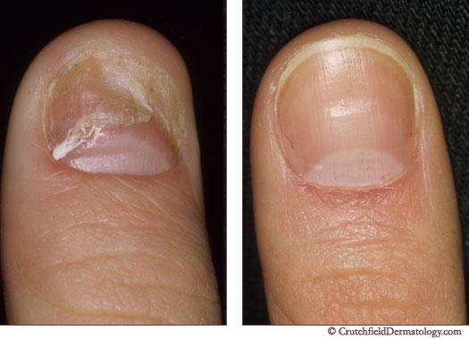 nail-treament