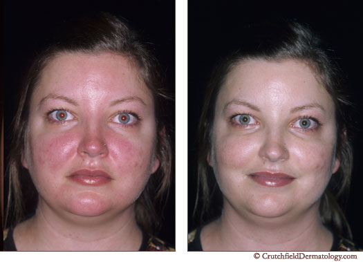 Rosacea adult before and after