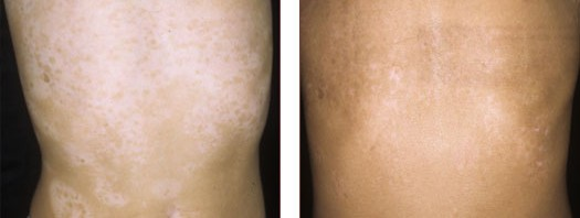 Vitiligo Phototherapy Treatment Success