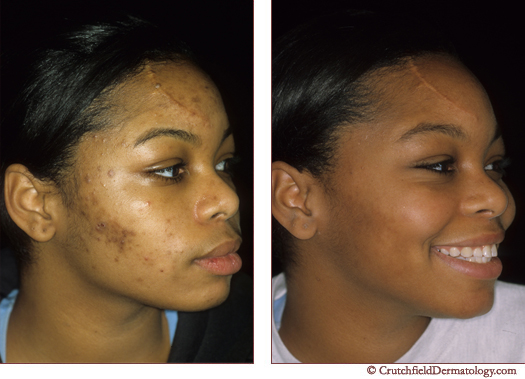 acne ethnic skin treatment