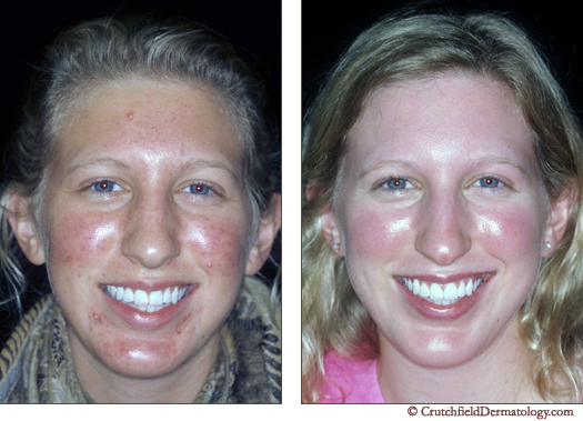 before and after acne treatment plan