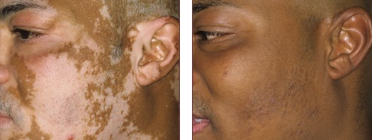 Successful Vitiligo Treatment