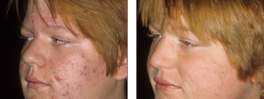 Successful Teen Acne Treatment