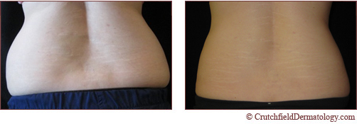 Coolsculpting for Love Handles