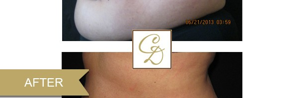 Coolsculpting Photos Before & After | Crutchfield Dermatology