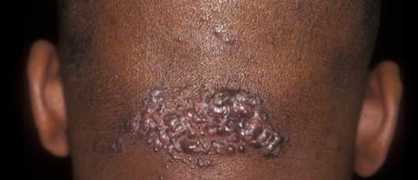 acne keloidis nuchae