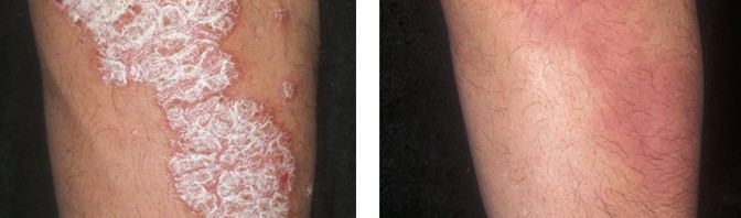 What is psoriasis and why should I care about it?