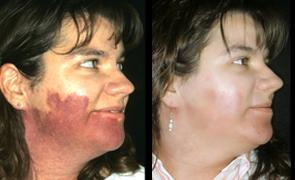 birthmarks