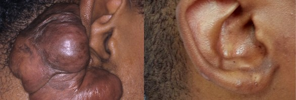 keloids treatment before and after