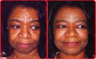 African american deramtology skin care